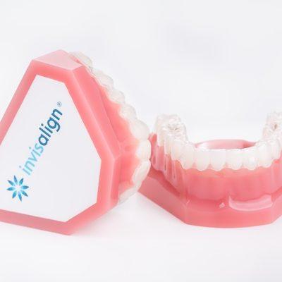 จัดฟันใส invisalign-1