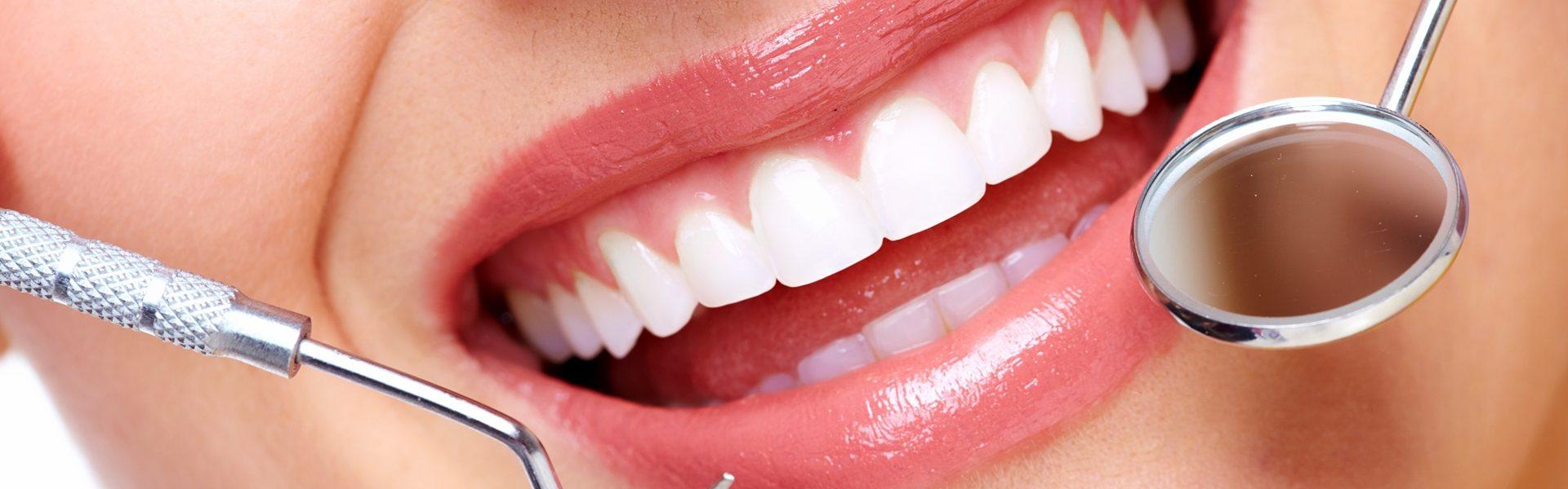 ฟอกฟันขาว